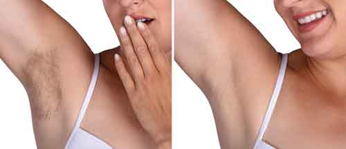 permanent hair removal Petersfield