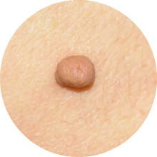 Skin blemish removal of Mole at ReVive Therapy Petersfield