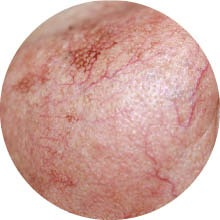 Skin Blemish Removal - Skin tags, Moles, Red Veins & Milia